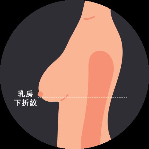 乳房輕度下垂