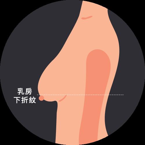 乳房中度下垂