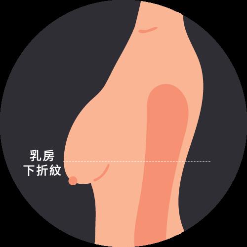 乳房嚴重下垂