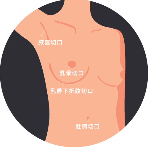 胸部整形手術切口位置