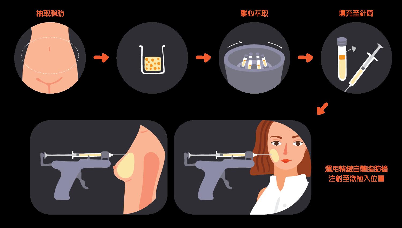 精微自體脂肪槍 MAFT-GUN® (Micro-Autologous Fat Transplantation Gun)