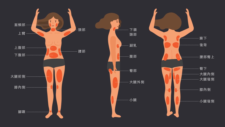 女性脂肪分佈圖