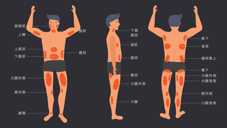 男性脂肪分佈圖